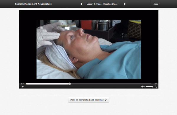 Screenshot HD Video Online Acupuncture Courses