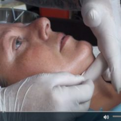Cosmetic Acupuncture Video