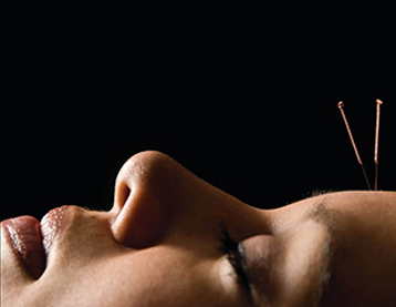 Facial Enhancement Acupuncture Offer